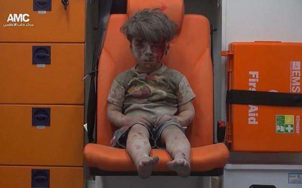 z20563263Q,5-letni-Omar-z-Aleppo